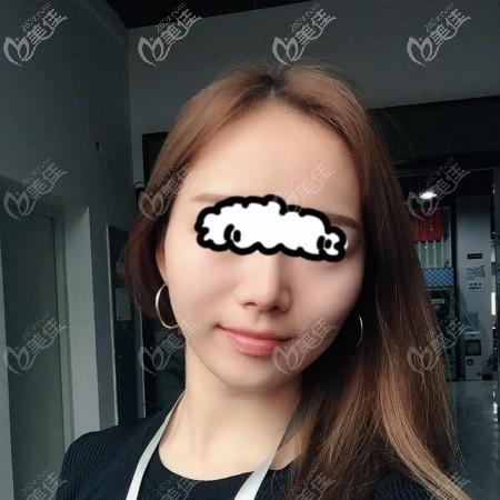全面对比后,在武汉美基元找汪福强医生做了肋骨鼻加膨体隆鼻综合手术