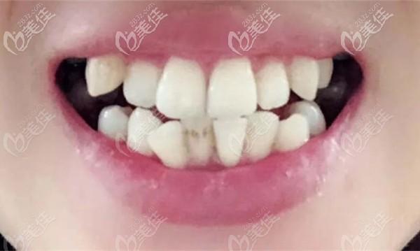 小姐姐在东莞同步齿科整牙前的口内照