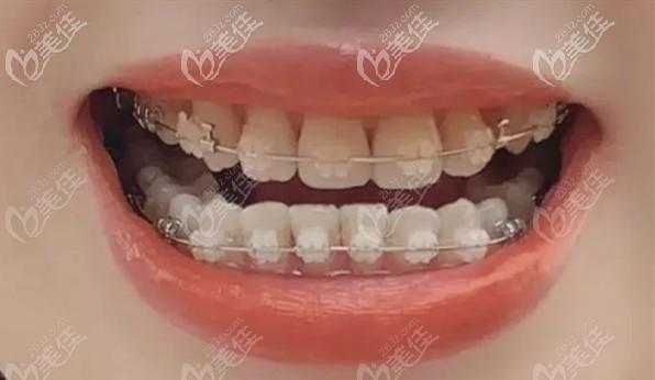 骨性龅牙在东莞同步齿科矫正过程图