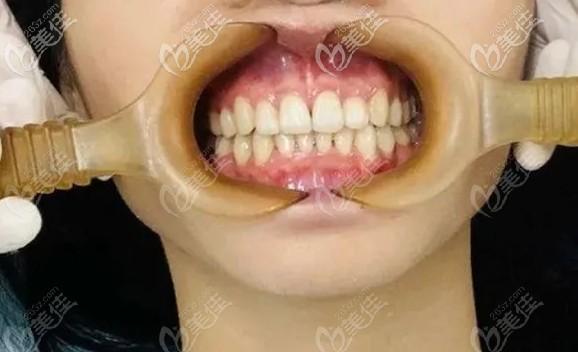 东莞同步齿科门诊部曾益平术后照片1