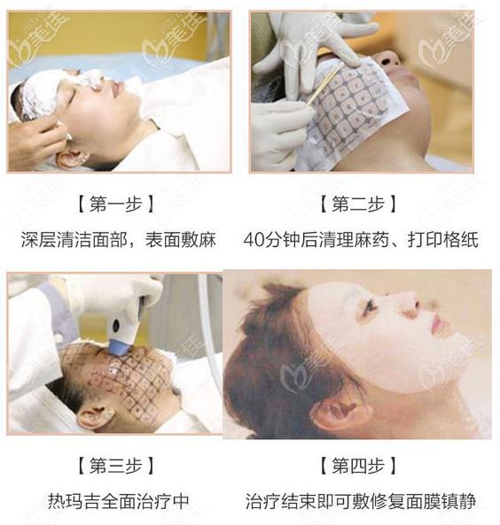 面部热玛吉治疗过程图