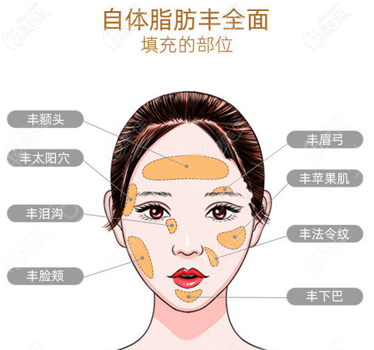 面部脂肪填充部位图