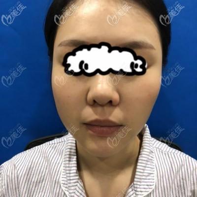 武汉亚韩整形外科医院邓正辉术前照片1