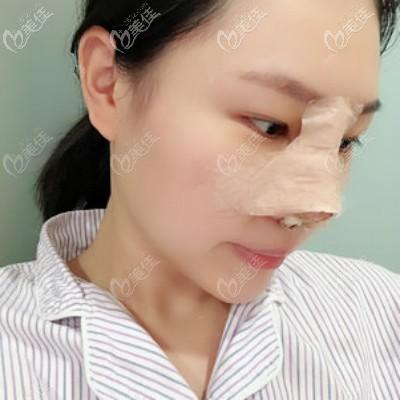 在武汉亚韩找邓正辉医生做自体肋骨隆鼻术后第3天