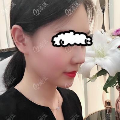 花3万在亚韩做自体骨隆鼻10天效果图