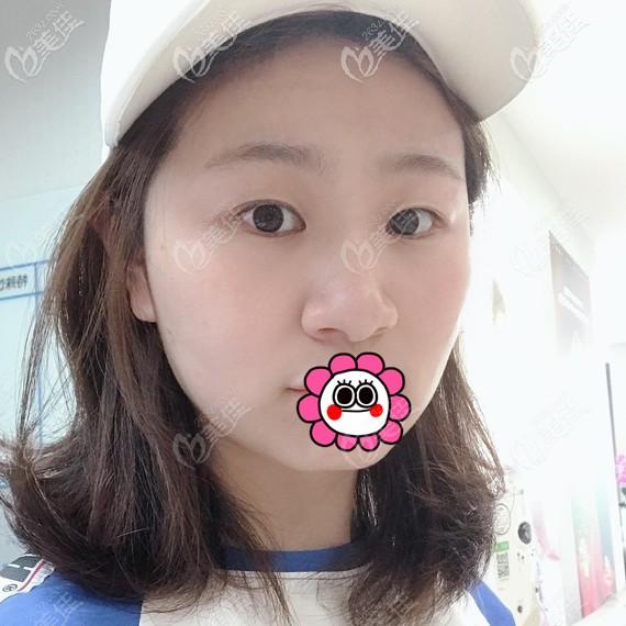 杭州时光医疗美容医院黄良飞术前照片1