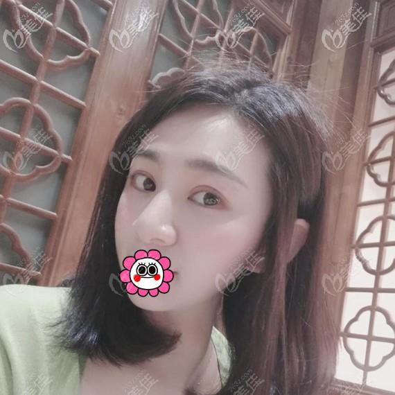 杭州时光黄良飞双眼皮恢复一个月效果