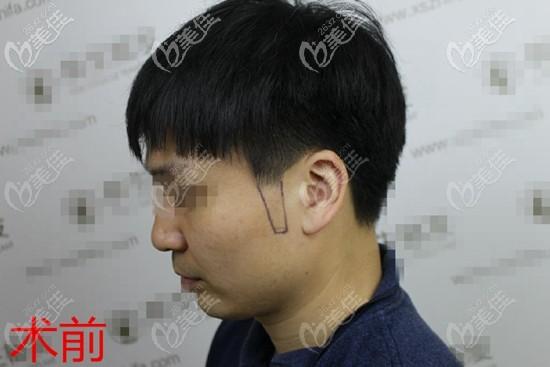 福州新生植发田辉术前照片1