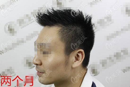 鬓角植发两个月遇到脱落期