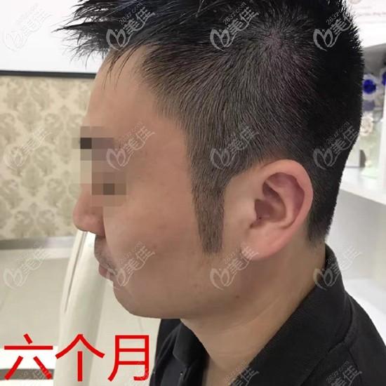 福州新生植发田辉术后照片1