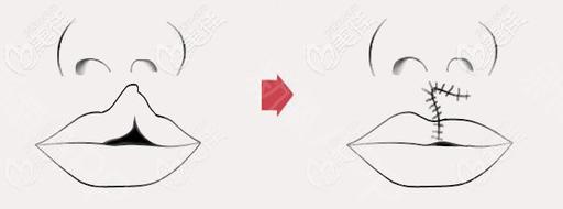唇腭裂一期修复手术示意图
