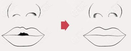 唇腭裂二期修复示意图