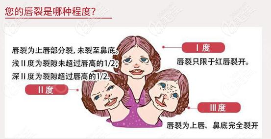 唇裂的三种不同程度