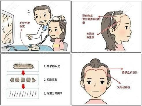 植发手术改善发际线高的问题