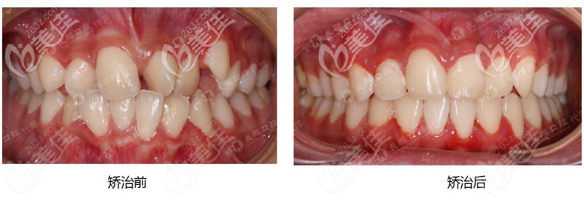 个别牙齿反颌戴Damon金属自锁牙套就能解决价格还不贵