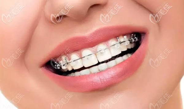 牙齿矫正价格到底多少钱呢