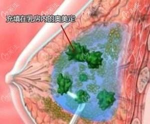 日本水分子液态丰胸危害