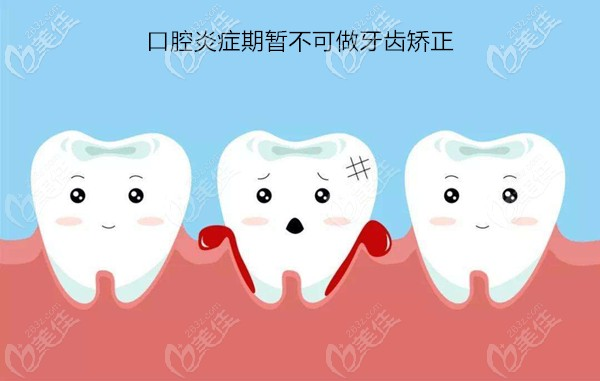 哪5类人不能做牙齿整形