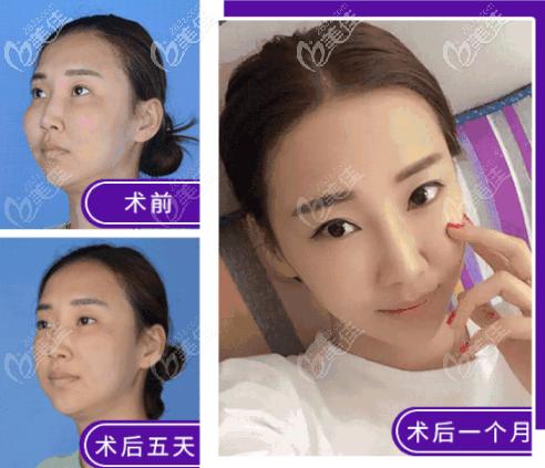北京艺美取生长因子案例