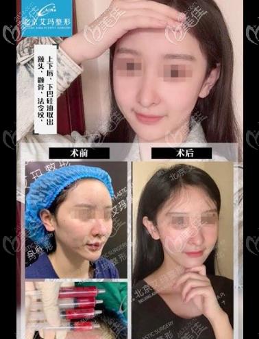 北京艾玛医院硅油取出案例
