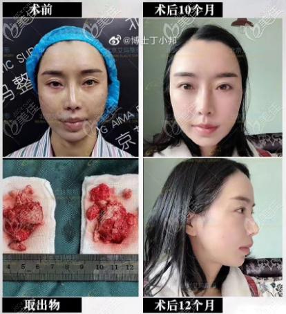 北京艾玛医院还可以做骨粉取出