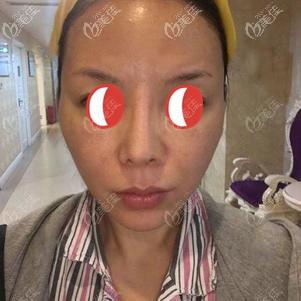 做脂肪胶填充全脸前顾客面部凹陷