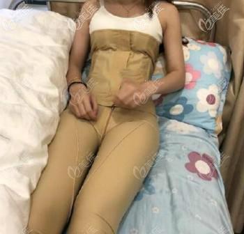 武汉同济医院全身吸脂术后第10天