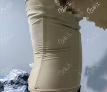 武汉同济医院腰腹吸脂+大腿吸脂术后55天恢复效果图
