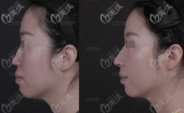 北京沃尔肋软骨隆鼻案例
