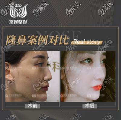 王志坚超体隆鼻案例