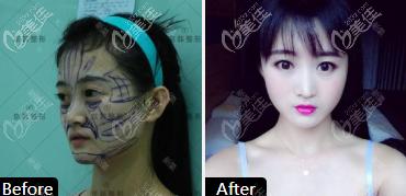 京韩面部自体脂肪填充求美者案例
