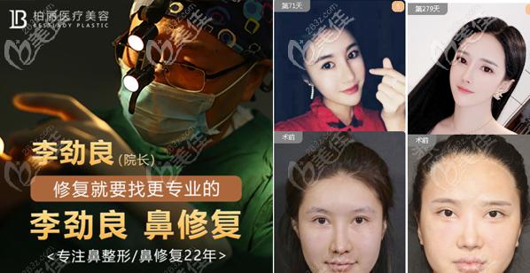 通过鼻修复案例看北京李劲良做鼻修复怎么样