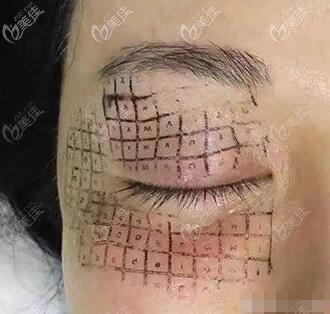 眼部热玛吉的治疗