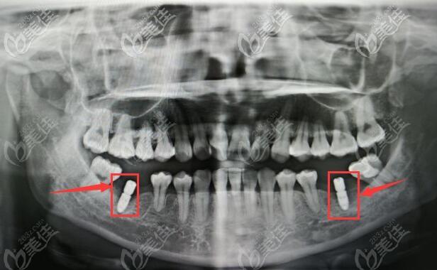 想知道武汉中山口腔闵双龙做种植牙怎么样?请打开这篇即刻种植牙的案例