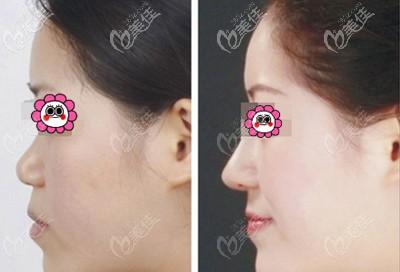 徐州美特莱斯硅胶隆鼻案例