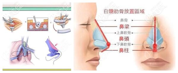 自体肋骨鼻手术