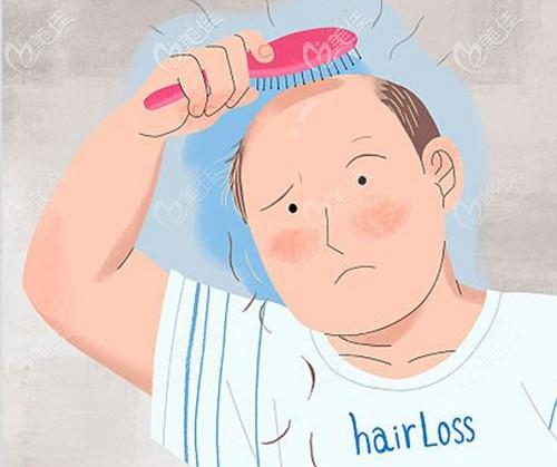 为什么很多人不去植发