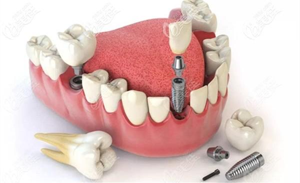 十几万的全口固定种植牙
