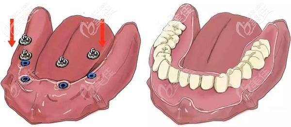 比活动假牙好用的半固定种植牙