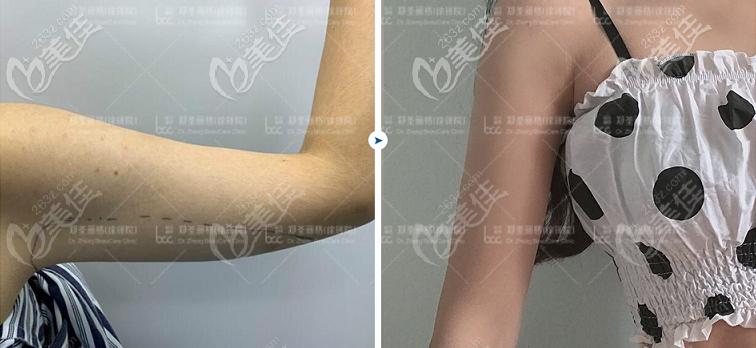 重庆5G天使光雕手臂吸脂效果