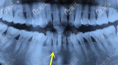 牙龈萎缩的照片