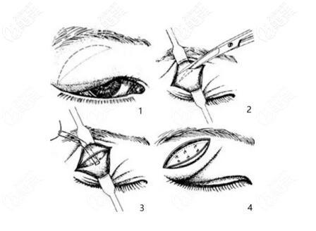 泪腺脱垂手术矫正方法