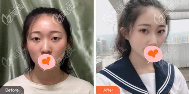 北京邦定双眼皮真人案例对比图