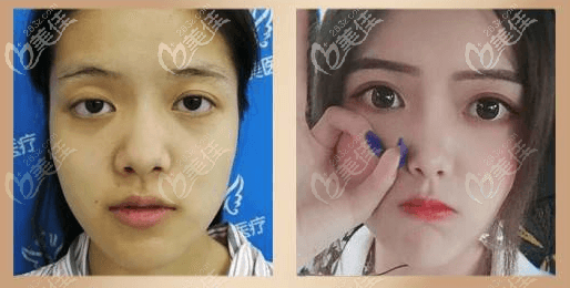 刘风卓双眼皮修复和内眼角矫正案例