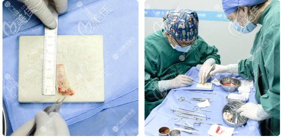 广州曙光王旭明鼻子修复之肋软骨雕刻过程图