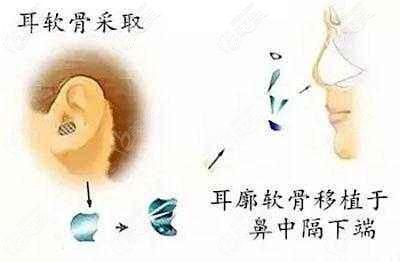 自体耳软骨隆鼻材料