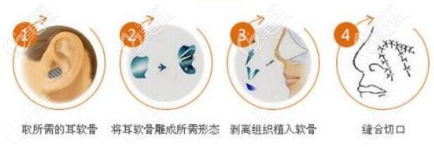 耳软骨隆鼻的原理