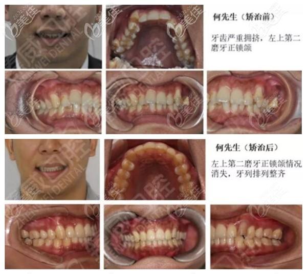 上海臻威口腔魏院长牙齿拥挤正畸案例