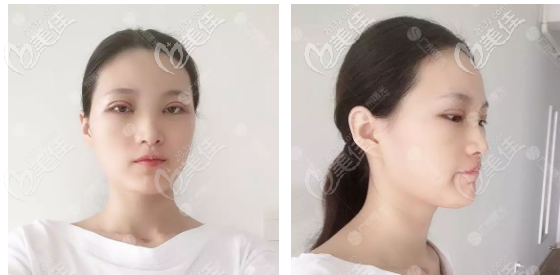 杨晓英医生双眼皮术后3天恢复效果