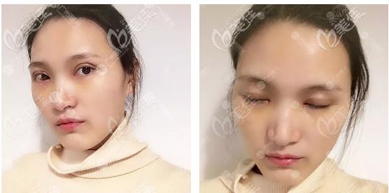 双眼皮恢复过程7天自拍